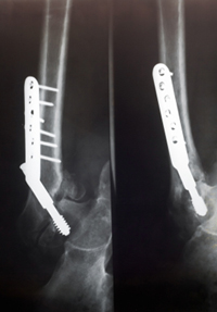 LawyersandSettlements.com Alerts Public of Dangers of Popular Bone Loss Drugs including Fosamax