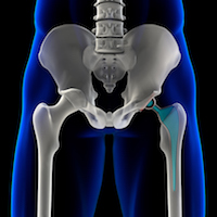 The FDA Shortcut to a Hip Replacement Lawsuit