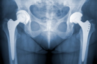 Zimmer Hips—Complaints Surpassing Implants?
