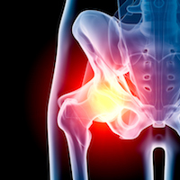 Defective Hip Implant Makers Busy with Recalls, Lawsuits and Settlements