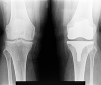 Smith & Nephew Defective Knee Replacements Under the Microscope