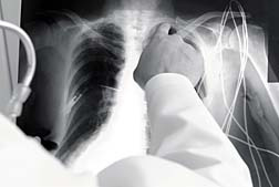 Asbestos diseases lung cancer