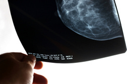 breast-cancer-mammography