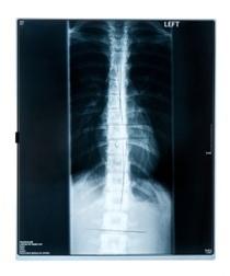 Erbs Palsy brachial plexus injuries