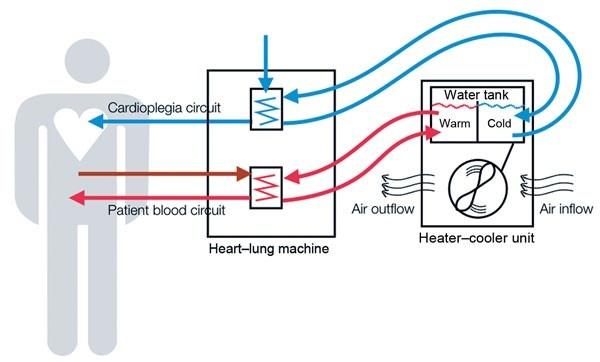 Stockhert diagram