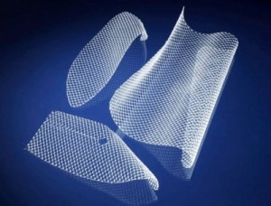 Boston Scientific Vaginal Mesh Settlement and More Abdominal Mesh Lawsuits Filed