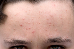 Image Result For Spot Treatment
