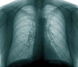 Mesothelioma Lawsuit Results in <br /> .42M Award