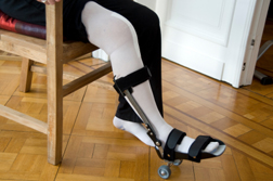 Zimmer NexGen Knee Lawsuits Seek MDL Consolidation