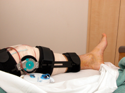 The Real Cost of Zimmer NexGen Knee Replacement Revision: Time