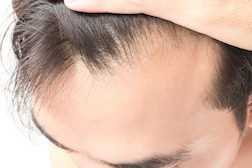 Another New Study Links Hair-Loss Treatment Propecia to Sexual Dysfunction