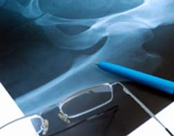 California Man Suffers from DePuy Orthopaedics Hip Implant