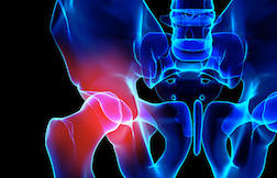 Defective Hip Litigation Continues On against Zimmer, Smith & Nephew