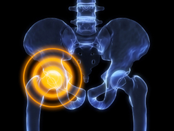 "DePuy Hip Replacement ""Poster Lady"" Sues"