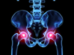 Johnson & Johnson Ordered to Pay <br />  Billion in Hip Replacement Lawsuit