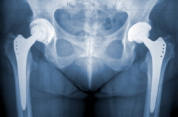 DePuy Hip Devices Recalled