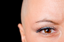Taxotere Hair Loss: Are Doctors Forthright with their Patients as to Risk?