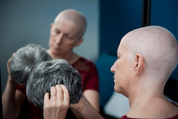 California Women Suffers Permanent Hair Loss after Taxotere Chemo – Suit Claims