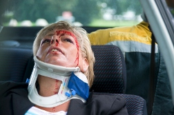 A Trio of Auto Accident Related Back and Neck Injuries