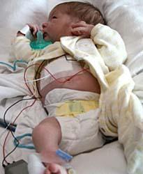 sick paxil baby